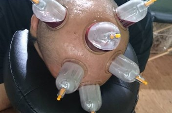 Treatment for headaches